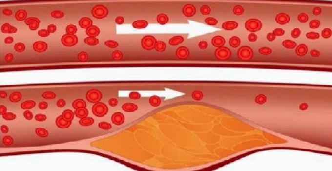Desobistruir arterias