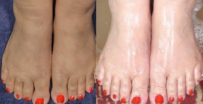 pés ressecados