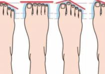 o formato do pé