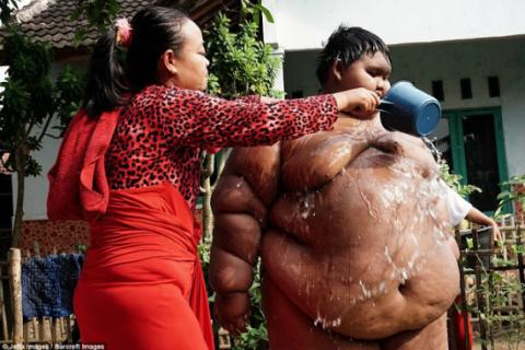 A Criança mais obesa do mundo