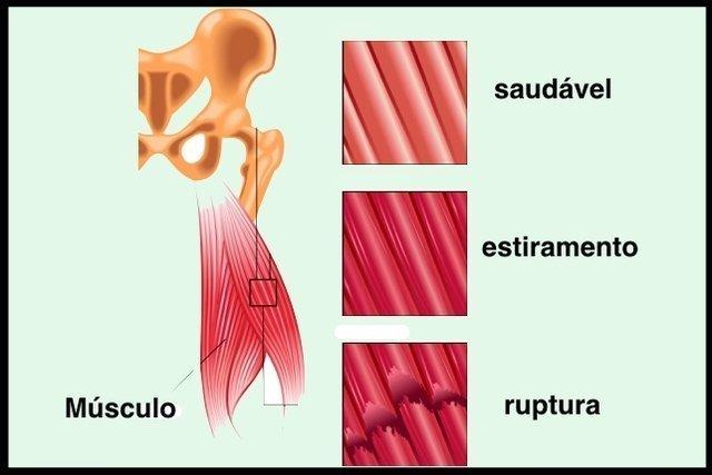 Saiba qual é a Diferença entre Estiramento e Distensão Muscular